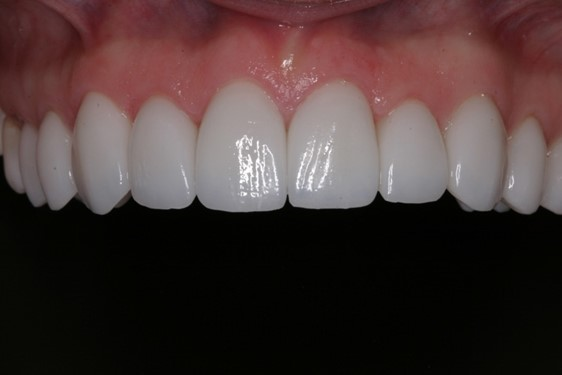 Jessica After - McCreight Progressive Dentistry Veneers