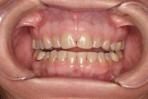 Before - Steamboat Dentistry cosmetic smile makeover