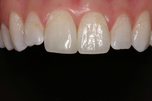 Large Chipped Tooth Restored with a Direct Resin