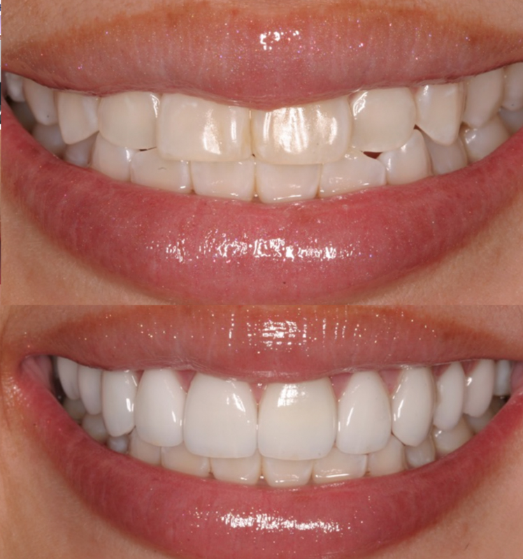 Smile Makeover with Porcelain Veneers