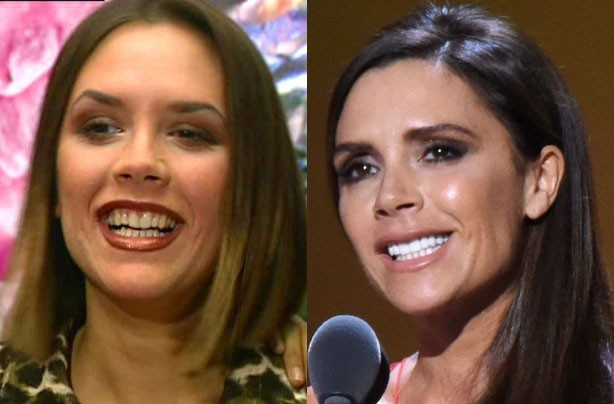 Celebrity teeth whitening review