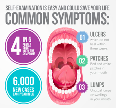 Common symptoms of oral cancer